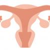この症状って子宮内膜症?放っておくとどうなるの?